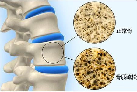 超声骨密度仪厂家介绍提供骨密度的药物和饮食
