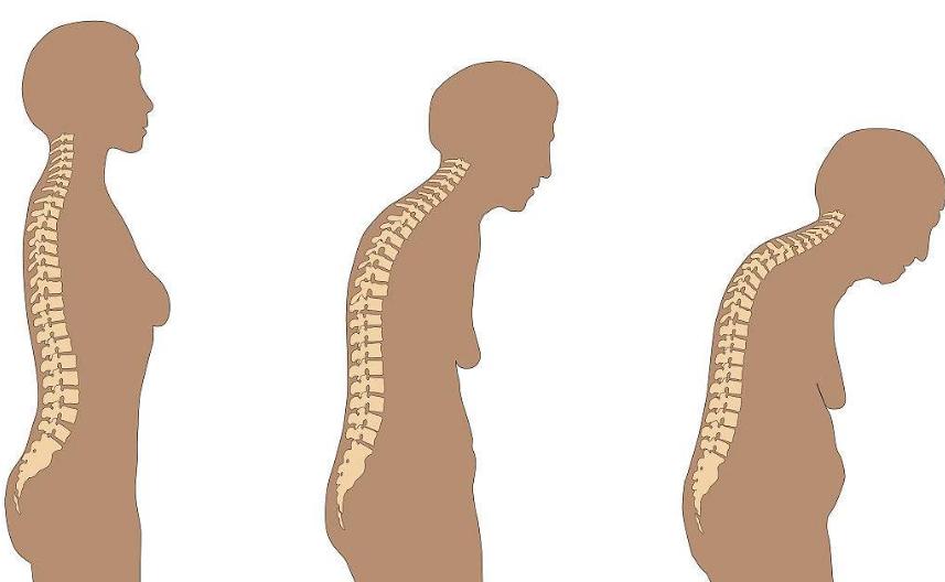 超声骨密度测量仪厂家分析因衰老骨骼的变化