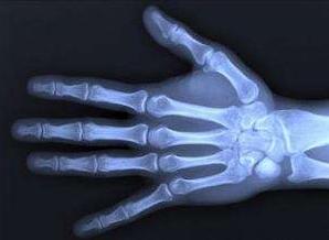 超声骨密度检测仪厂家谈怎么测骨龄