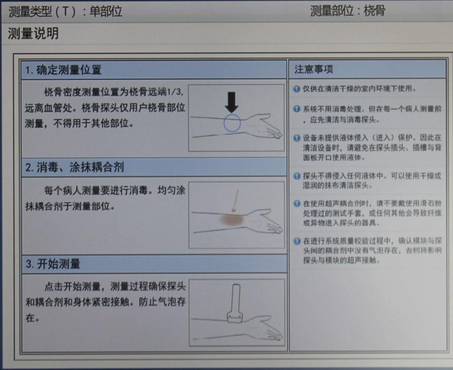 超声骨密度检测仪测量部位的定位