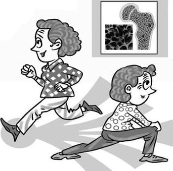便携式骨密度仪检测原发性骨质疏松症诊治方法