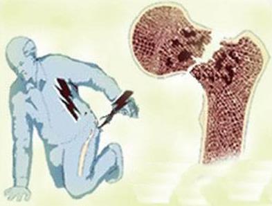 <b>便携式骨密度检测仪分析老年人骨折后的症状有哪些?</b>