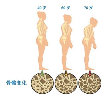 便携式骨密度检测仪厂家谈骨密度的数值越高越好吗