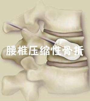 超声骨密度仪品牌山东国康建议腰椎骨裂了吃啥修复快?