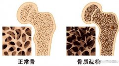 超声波骨密度仪器生产厂家提醒骨折——骨质疏松症的严重后果