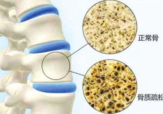 45岁后,便携式骨密度仪检测没到达规范的人,需求增强骨密度